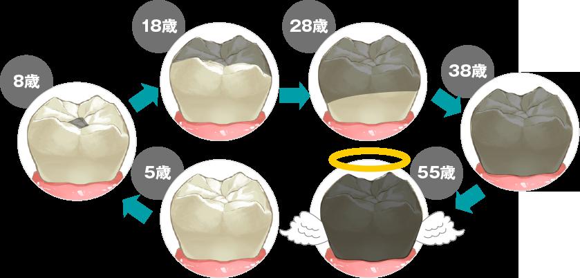 虫歯や歯周病になると歯を失いやすい