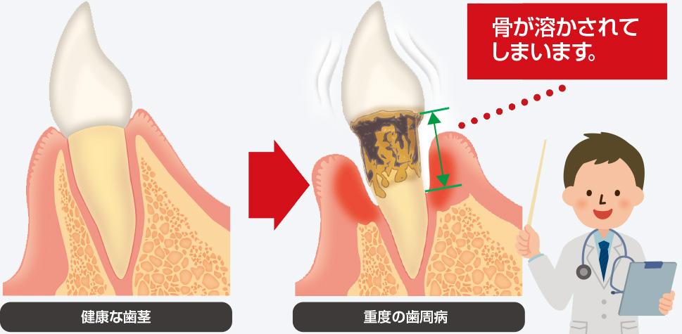 虫歯や歯周病の再発リスク
