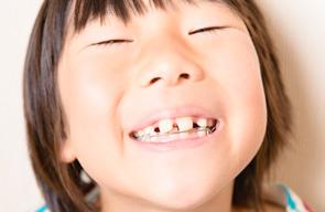 永久歯になる子供